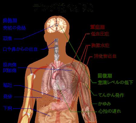 16.4.7.wikipediaデング熱の症状